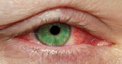 bloodshot-eyes
